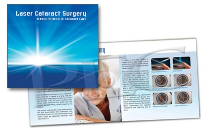 Laser Cataract Surgery Brochure